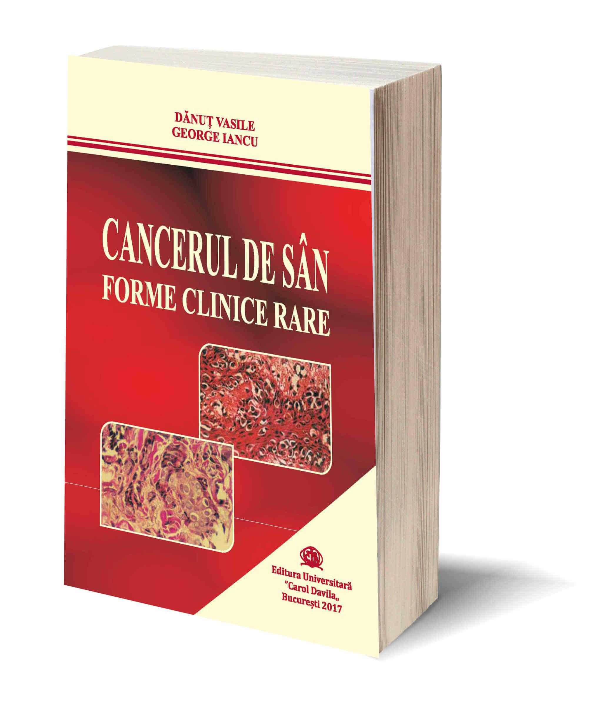 Cancerul de San Forme Clinice Rare