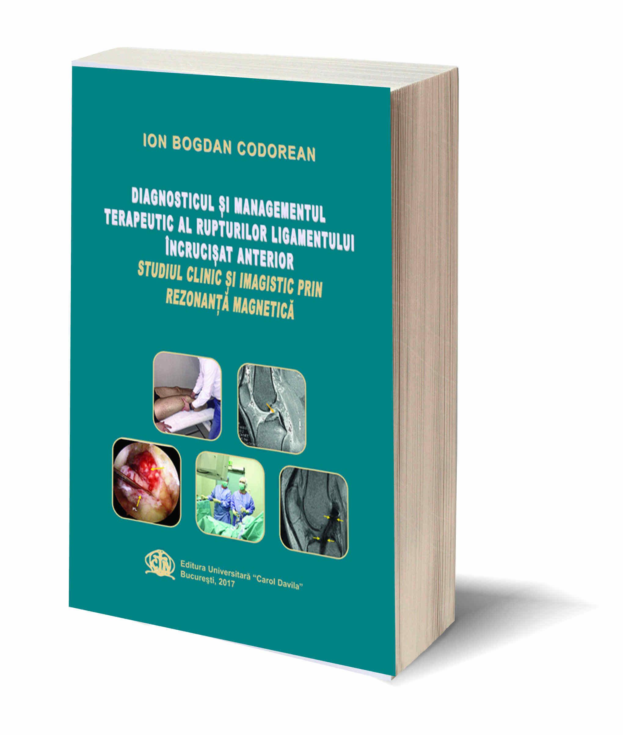 Diagnosticul si managementul terapeutic al rupturilor ligamentului incrucisat anterior – Studiu clinic si imagistic prin rezonanta magnetica