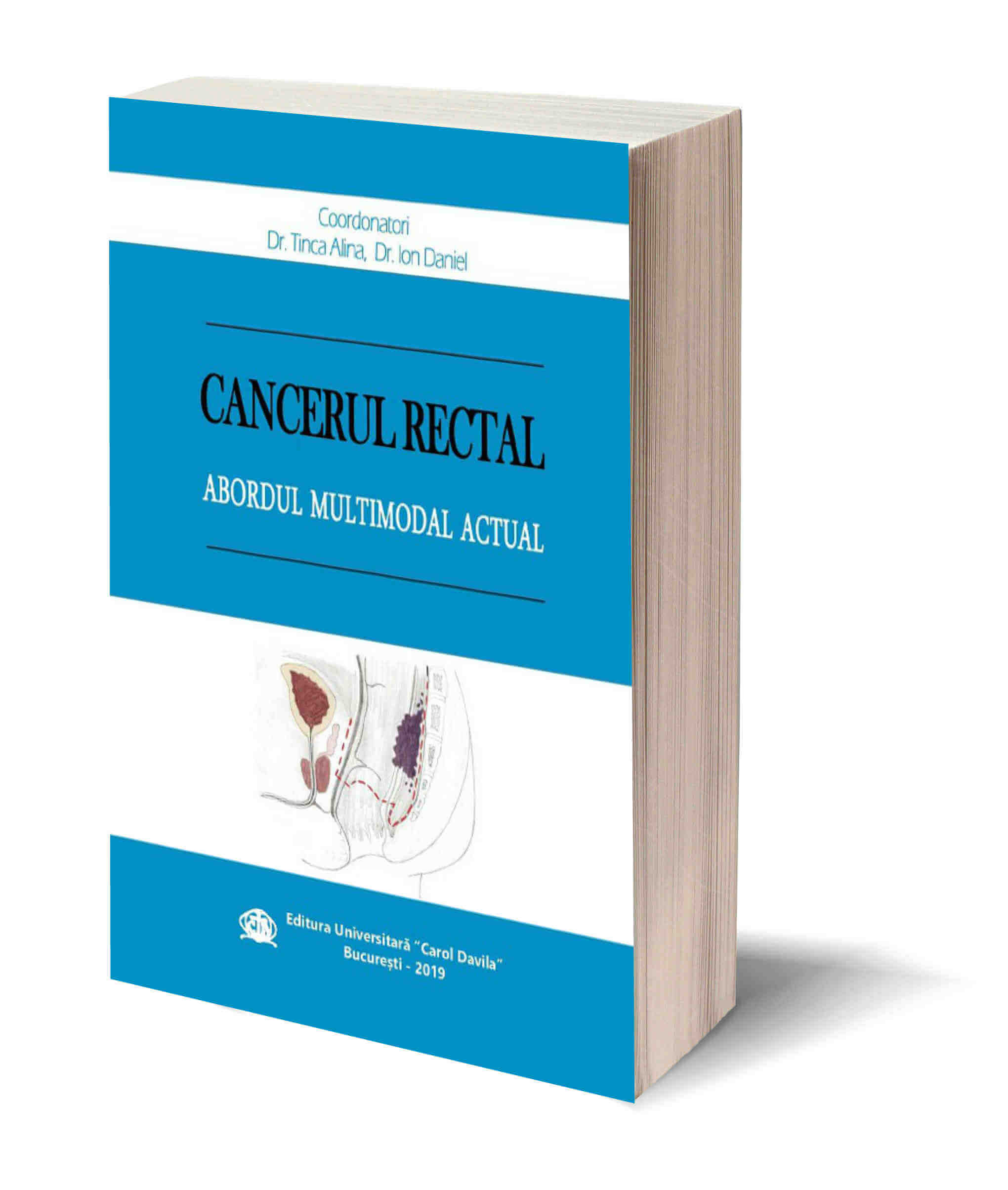 Cancerul rectal – Abordul Multimodal Actual